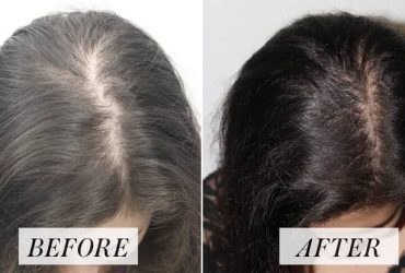 GET YOUR HAIR back today