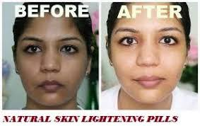 Zawe Beauty Clinic Skin lightening & whitening  Call on +27(63)0716312